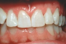 Bleached teeth and replacement of fillings