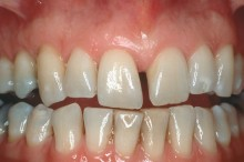 Tooth asymmetry in multiple areas