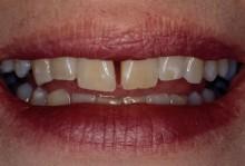 Uneven proportion between teeth